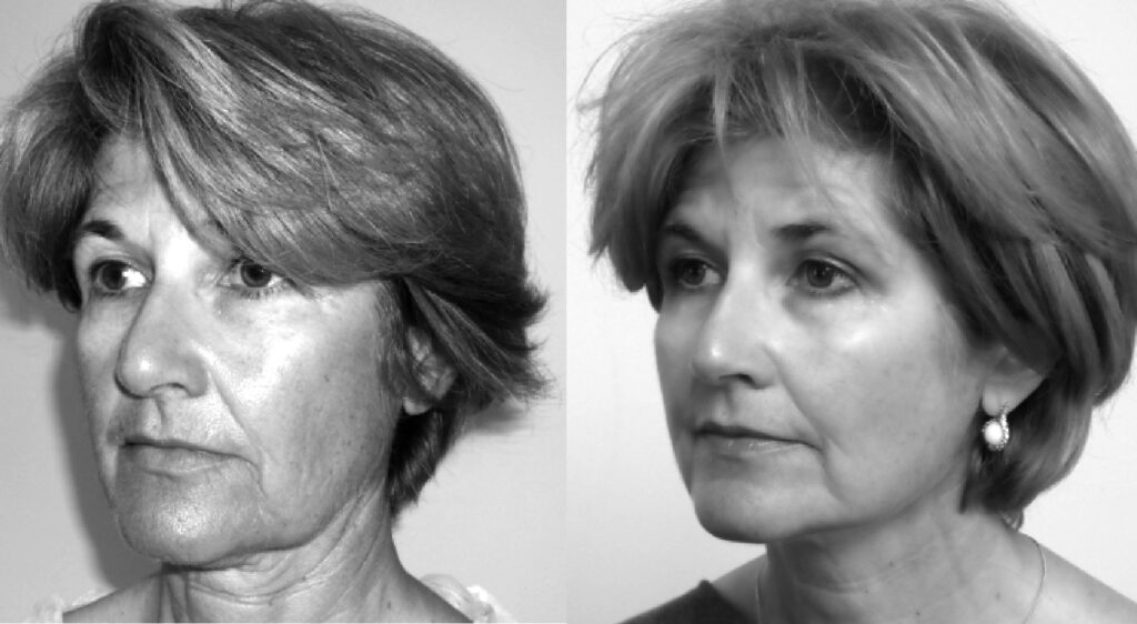 PDO Thread Facelift Newark Notts Lincolnshire
