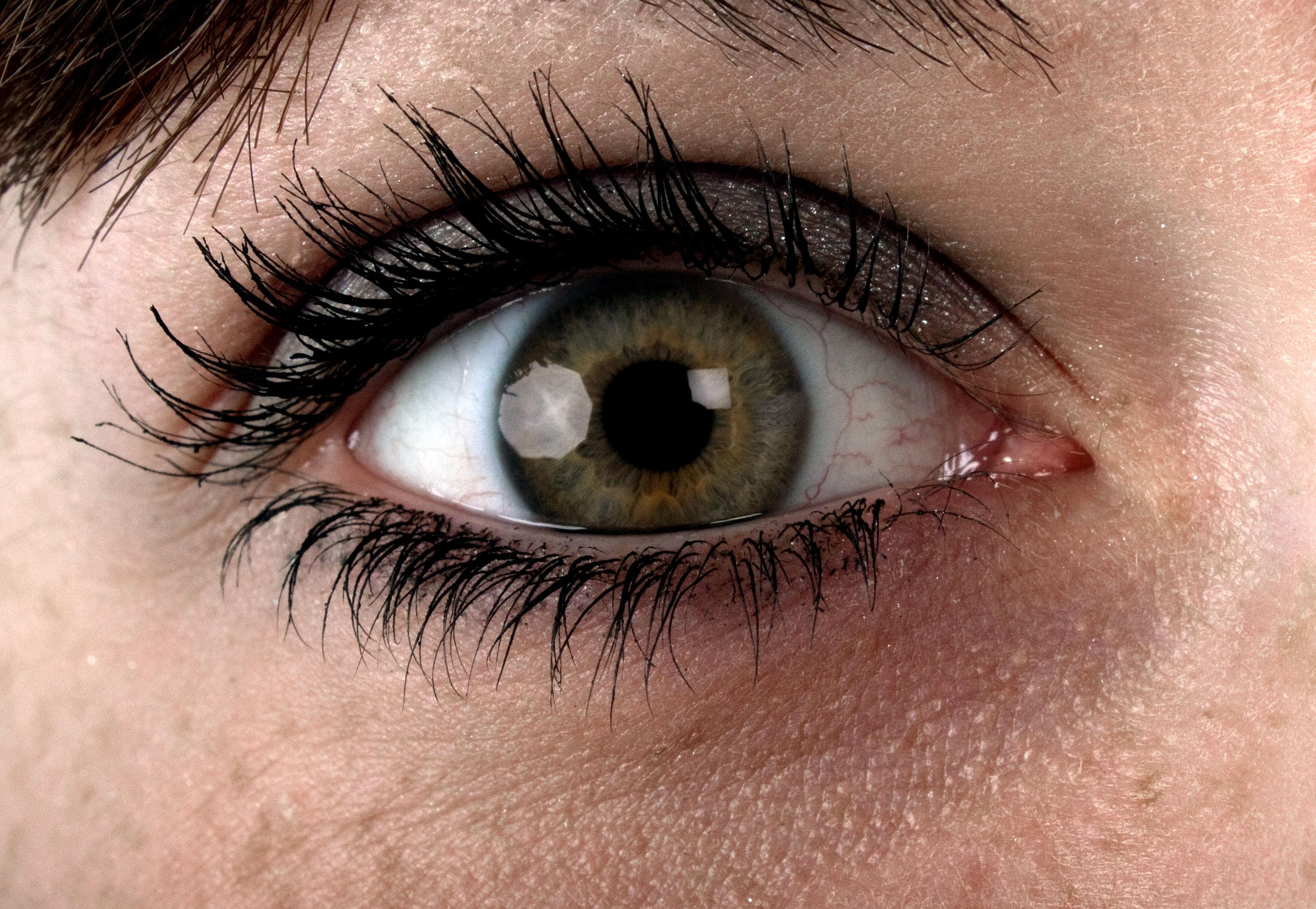 Tear Trough Eye