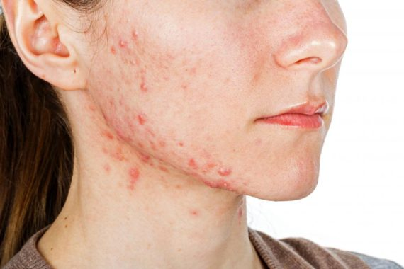 Acne clinic treatment