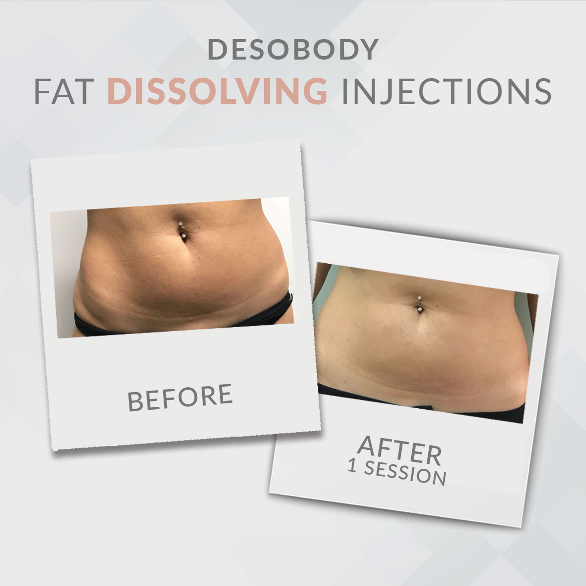 fat injections