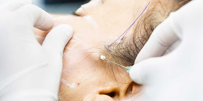 Facelift clinic Lincolnshire