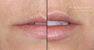 Restylane Lip Filler